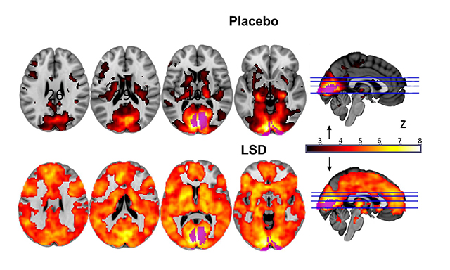 Could LSD actually be good for your brain?